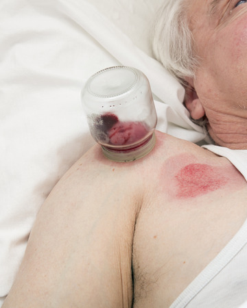 hematoma: Multiple vacuum cup of medical cupping therapy on human body