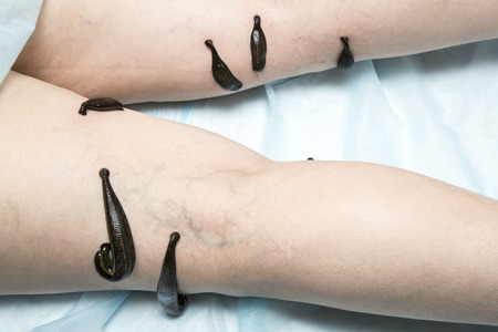 limbs: Treatment with leeches thrombophlebitis of the lower limbs of an adult woman