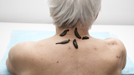 enzymes: Treatment of headache, activity, dizziness, tinnitus medical leeches.