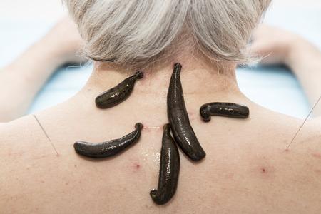 sanguijuela: El tratamiento de dolor de cabeza, actividad, mareos, sanguijuelas médicos de tinnitus. Foto de archivo