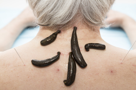 hemorragia: Treatment of headache, activity, dizziness, tinnitus medical leeches.