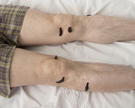 sanguijuela: El tratamiento con sanguijuelas rodilla. Leech en Tsu-san-li - punto de cien enfermedades.