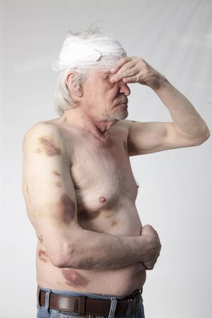 Shattered bandits man with bruises and hematomas Stock Photo