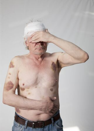 Shattered bandits man with bruises and hematomas Stock Photo