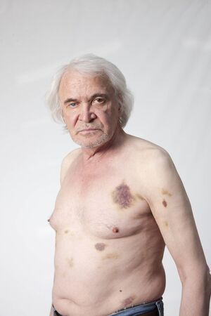 bandits: Shattered bandits man with bruises and hematomas Stock Photo
