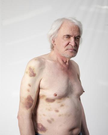 venganza: Destrozada hombre bandidos con contusiones y hematomas Foto de archivo