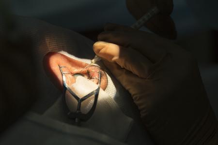 白内障、眼科眼科手術、超音波による不透明なレンズの破壊。目のレンズの交換、眼内レンズのインストール、ウランウデでロシアで手術白内障治 写真素材
