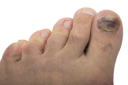 Fungal infection on the human toe. Psoriasis on the foot of an old man. Onychomycosis is a fungal infection of the big toe. Nail melanoma. Standard-Bild