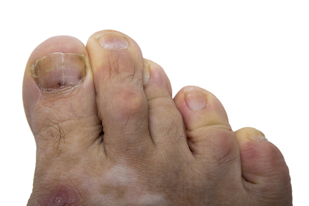 Fungal infection on the human toe. Psoriasis on the foot of an old man. Onychomycosis is a fungal infection of the big toe. Nail melanoma. Stock Photo