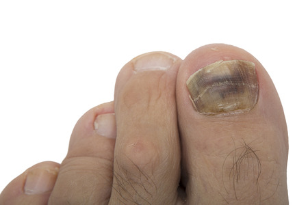Fungal infection on the human toe. Psoriasis on the foot of an old man. Onychomycosis is a fungal infection of the big toe. Nail melanoma. 스톡 콘텐츠