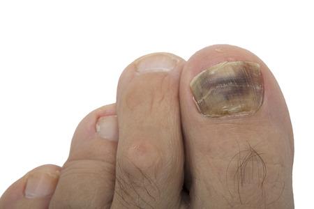 Pilzinfektion an der menschlichen Zehe. Psoriasis am Fuße eines alten Mannes. Onychomykose ist eine Pilzinfektion der großen Zehe. Nagelmelanom. Standard-Bild