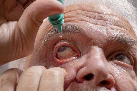 Self-instillation of eye drops in patients with glaucoma eyes. An elderly man with glaucoma. 写真素材 - 134419091