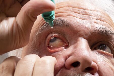 Self-instillation of eye drops in patients with glaucoma eyes. An elderly man with glaucoma. 写真素材 - 134419096