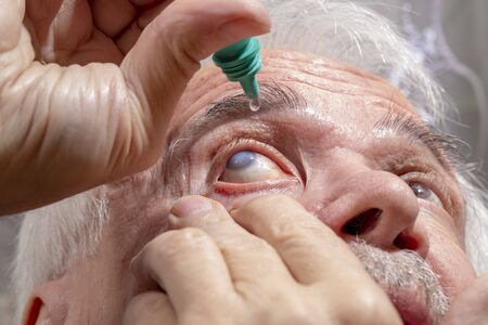 Self-instillation of eye drops in patients with glaucoma eyes. An elderly man with glaucoma.