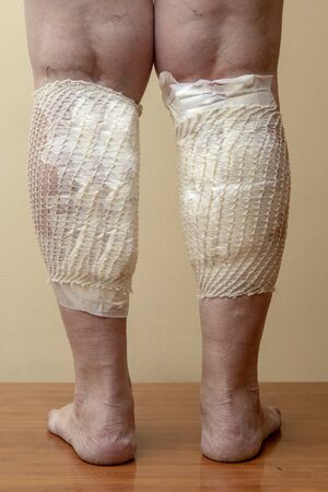 Bandaged varicose legs after treatment with medical leeches. Treatment of varicose veins with hirudotherapy.