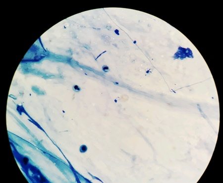 Smear of Acid-Fast bacilli AFB stained from sputum specimen, under 100X light microscope.