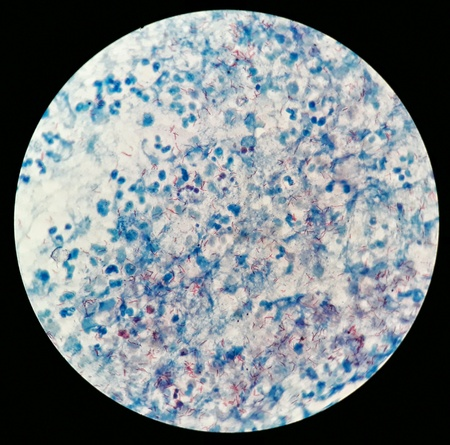 Smear of Positive Acid Fast Bacilli AFB stained for MTB, under 100X light microscope. Stock Photo