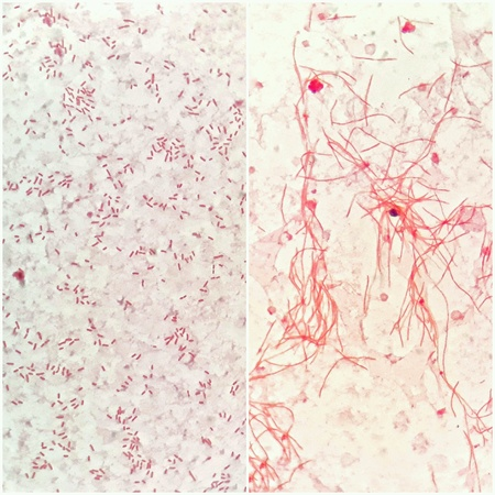 Smear of human blood cultured Gram s stain, compare 2 types of gram negative bacilli bacteria. Stock Photo