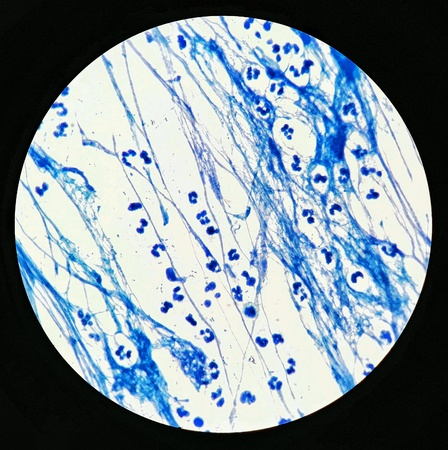 Smear of Acid-Fast bacilli AFB stained with WBC and mucous, under 100X light microscope.