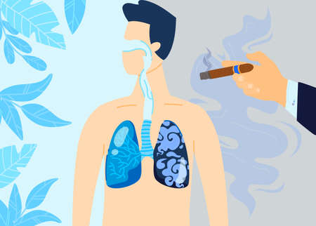 Smoking lung damage vector illustration, cartoon flat damaged with nicotine cigarettes, tobacco respiratory system, medical poster