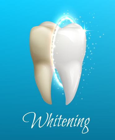 Teeth whitening 3d concept. Comparison of clean and dirty tooth before and after whitening treatment. Teeth whitening procedure, dental health and oral hygiene poster for dentistry design Stock Vector - 78980205