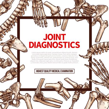 관절 진단 또는 인체 건강 검진 포스터. 척추, 다리 또는 발 발목의 벡터 관절 뼈 및 건강 요법 또는 엑스레이 정형 외과 및 수술 용 병원 손목 또는 팔  일러스트