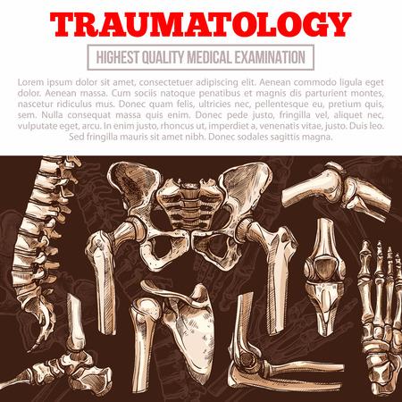 Plakat medycyny traumatologicznej z kością i stawem