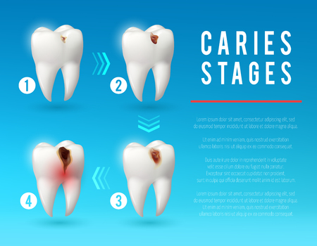 Tooth decay 3d poster of dental caries development Illustration