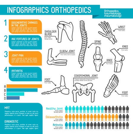Orthopedics medicine infographic design. Joint and bone disease statistic graph and chart, human skeleton anatomy diagram with spine, foot and hand, knee, shoulder, elbow and pelvis body part Illustration