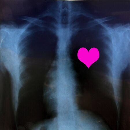 Chest x-ray with heart Stock Photo - 8511246