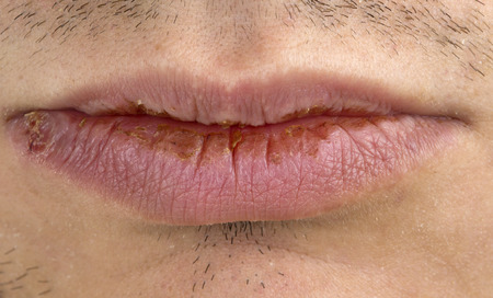 herpes: Monafestation of herpes on young man lips