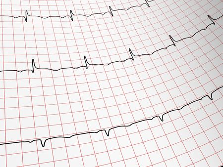 myocardium: EKG -  Monitor Stock Photo
