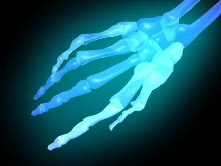 radiography: palm of skeleton x-rays