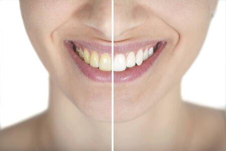 Bleaching before and after
