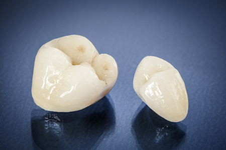 cerámicas: coronas dentales de cerámica libre de metal