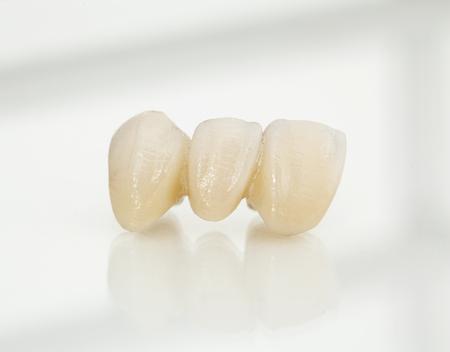 Metal free ceramic dental crowns