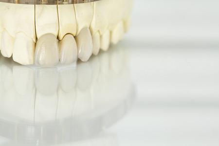 금속 무료 세라믹 치과 크라운