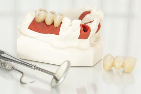 laboratorio dental: coronas dentales de cerámica libre de metal