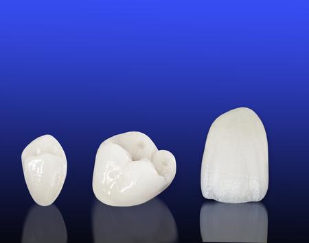 ceramica: coronas dentales de cerámica libre de metal