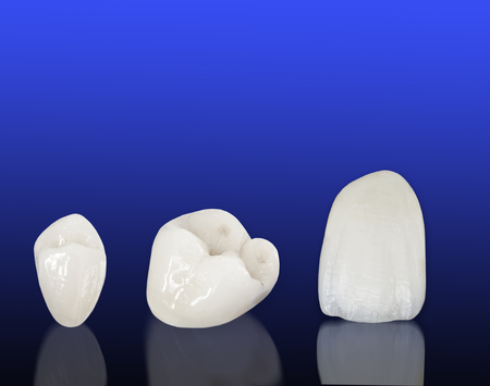 ceramika: Metal free ceramic dental crowns