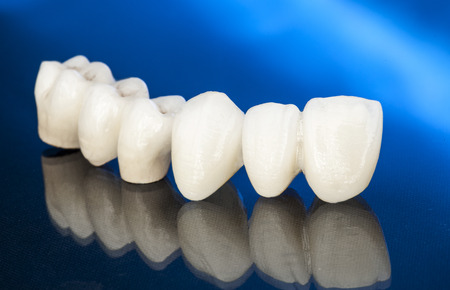 Metal free ceramic dental crowns Фото со стока - 54897876