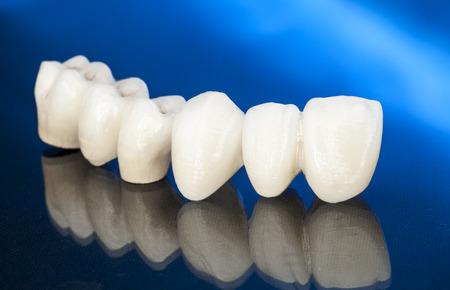 sans métal couronnes dentaires en céramique