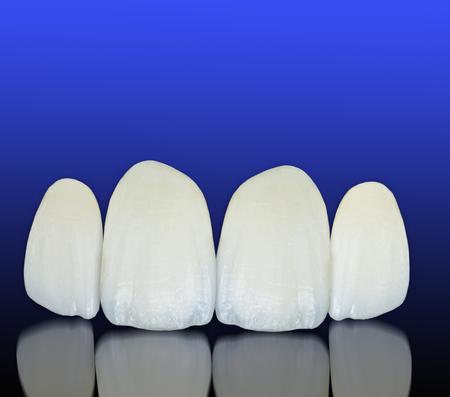 Coronas dentales de cerámica libre de metal Foto de archivo - 54897877