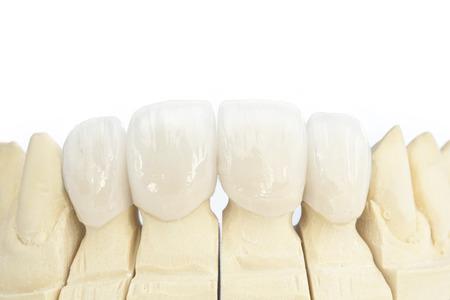 Coronas dentales de cerámica libre de metal Foto de archivo - 58621370