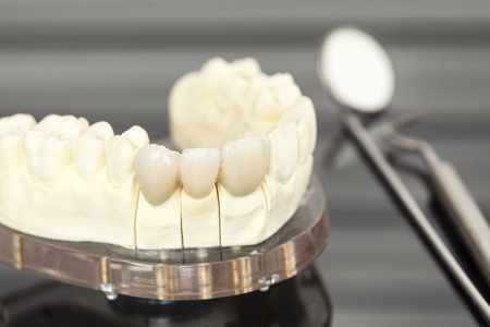 prosthetics: Dental health care