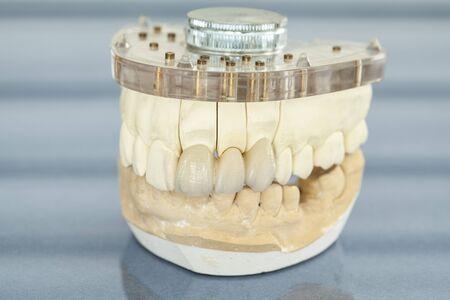 false teeth: Dental health care