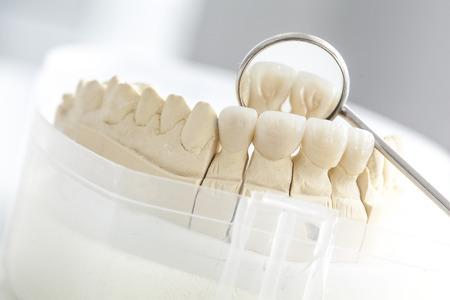 false teeth: Ceramic bridge on plaster model