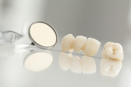 prothèse dentaire: pont en céramique vue rapprochée