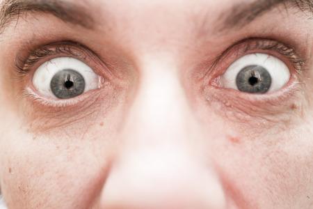 ojos marrones: Grandes ojos del hombre, mucho algo sorprendido Foto de archivo