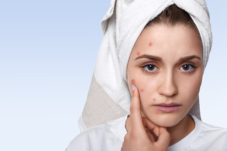 An isolated portrait of young woman having problem skin and pimple on her cheek, wearing towel on her head having sad expression pointing at her pimple being in bathroom. Beauty and spa concept.